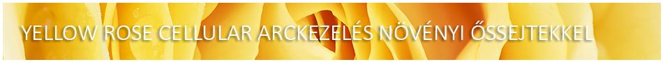 YELLOW ROSE CELLULAR ARCKEZELÉS