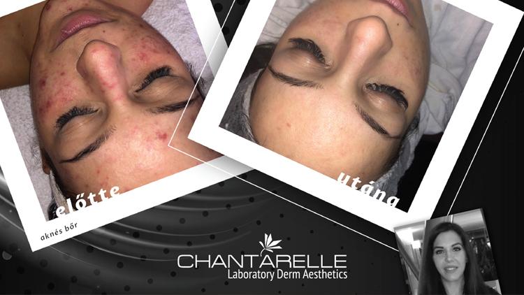 Egy Chantarelle kozmetikus véleménye